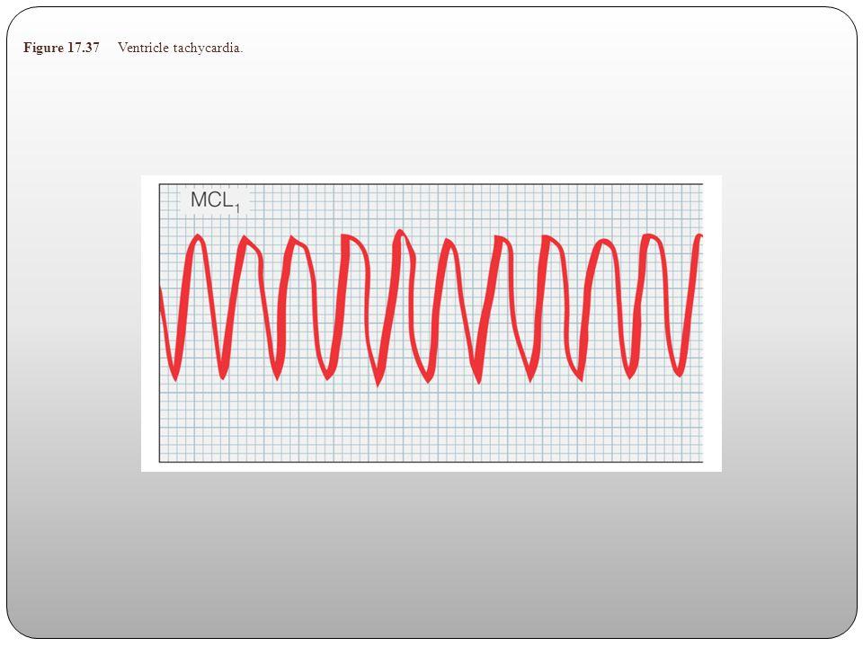 Figure 17.37 Ventricle tachycardia.