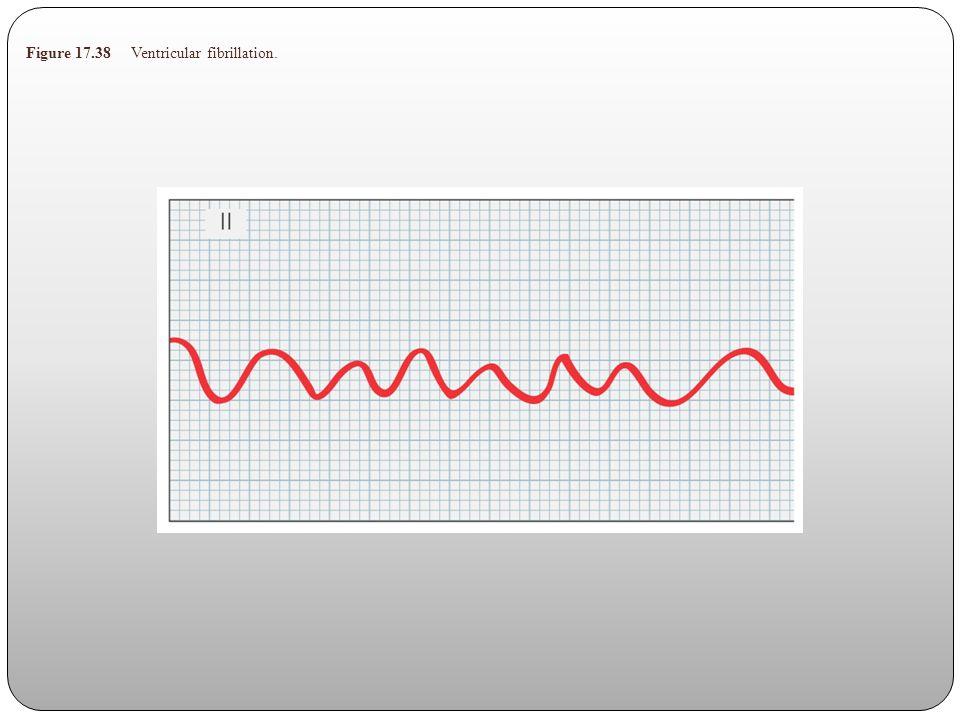 Figure 17.38 Ventricular fibrillation.