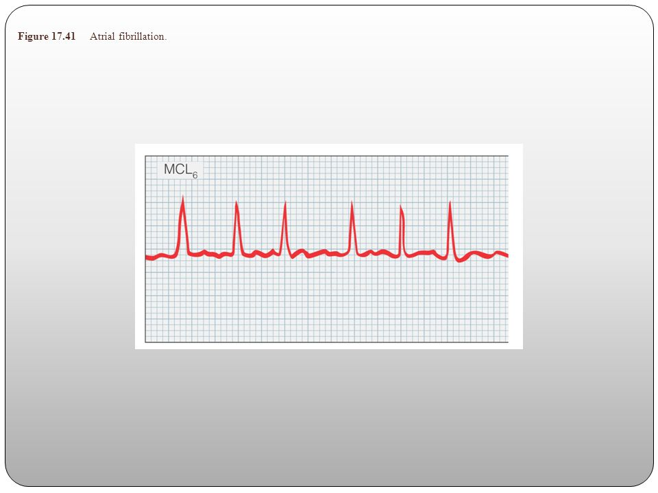 Figure 17.41 Atrial fibrillation.