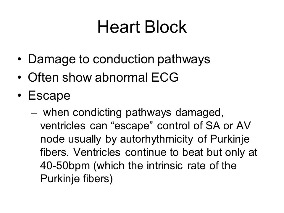 Heart Block Damage to conduction pathways Often show abnormal ECG