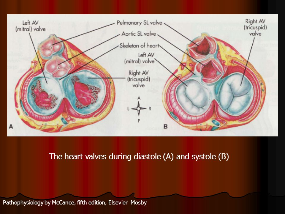 The heart valves during diastole (A) and systole (B)