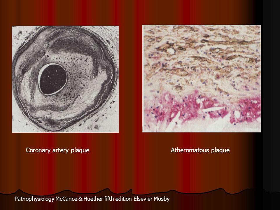 Coronary artery plaque Atheromatous plaque