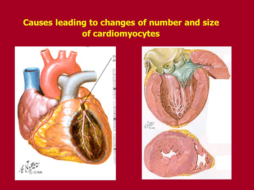 Causes leading to changes of number and size