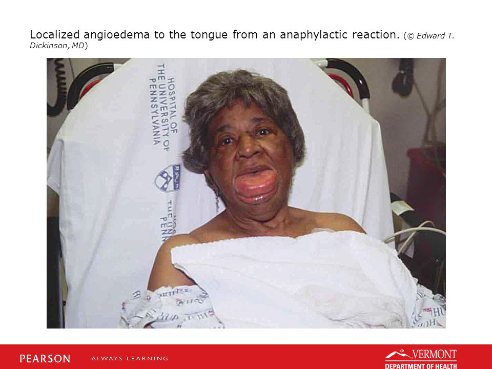 Localized angioedema to the tongue from an anaphylactic reaction