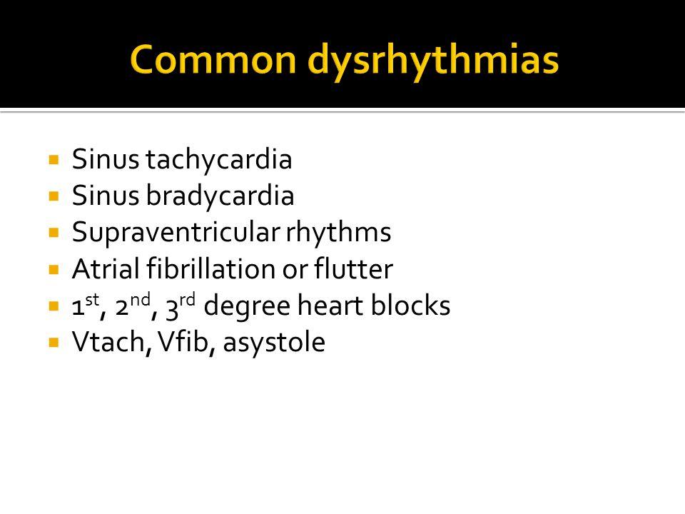 Common dysrhythmias Sinus tachycardia Sinus bradycardia