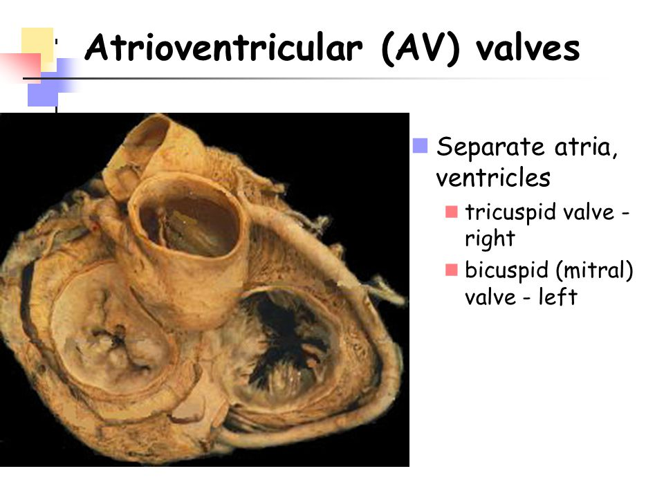 Atrioventricular (AV) valves