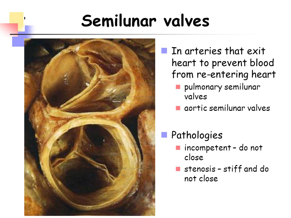 Semilunar valves In arteries that exit heart to prevent blood from re-entering heart. pulmonary semilunar valves.