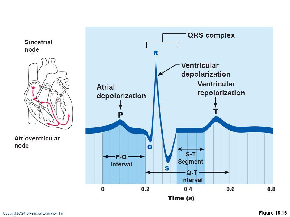QRS complex Ventricular depolarization Ventricular Atrial