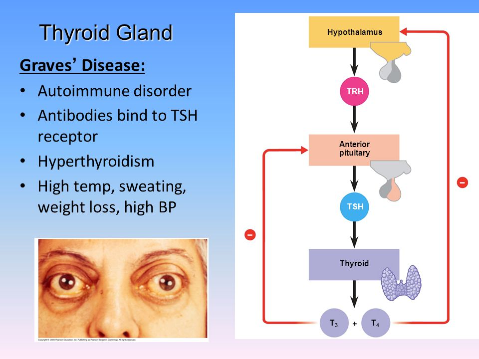 Thyroid Gland Graves' Disease: Autoimmune disorder