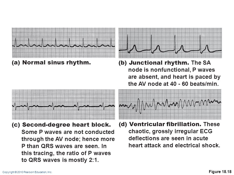 (a) Normal sinus rhythm. (b) Junctional rhythm. The SA