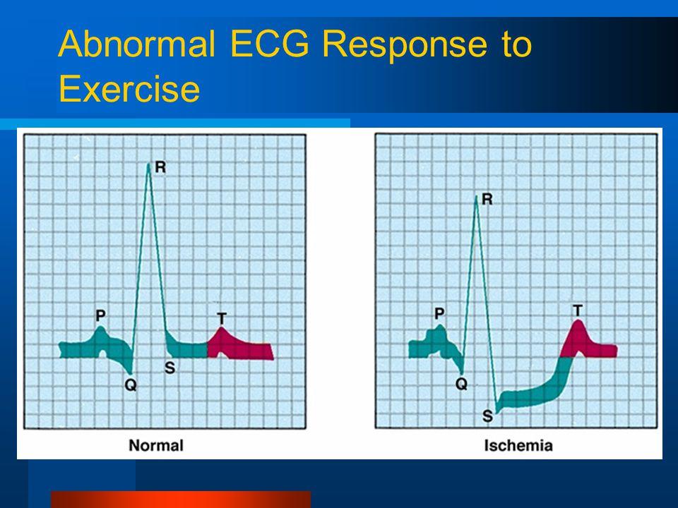 Abnormal ECG Response to Exercise