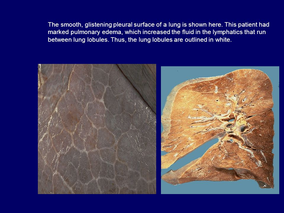 The smooth, glistening pleural surface of a lung is shown here