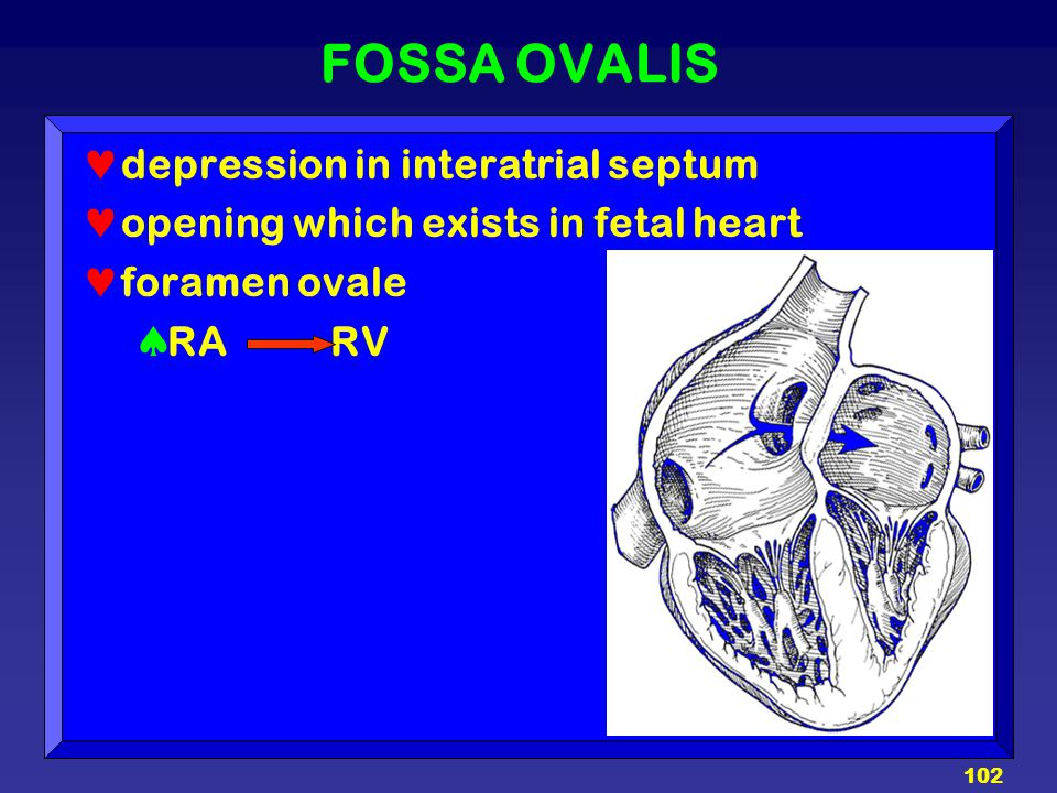FOSSA OVALIS depression in interatrial septum