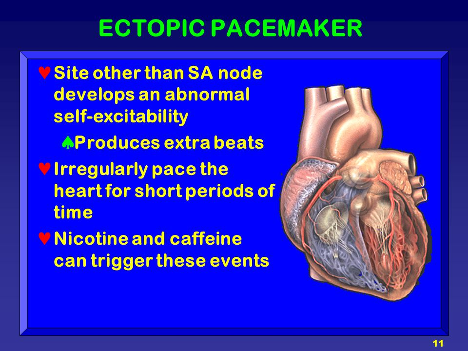 ECTOPIC PACEMAKER Site other than SA node develops an abnormal self-excitability. Produces extra beats.