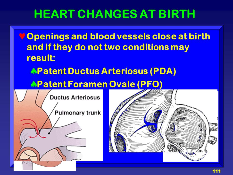 HEART CHANGES AT BIRTH Openings and blood vessels close at birth and if they do not two conditions may result:
