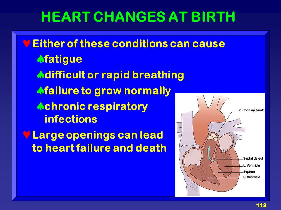 HEART CHANGES AT BIRTH Either of these conditions can cause fatigue
