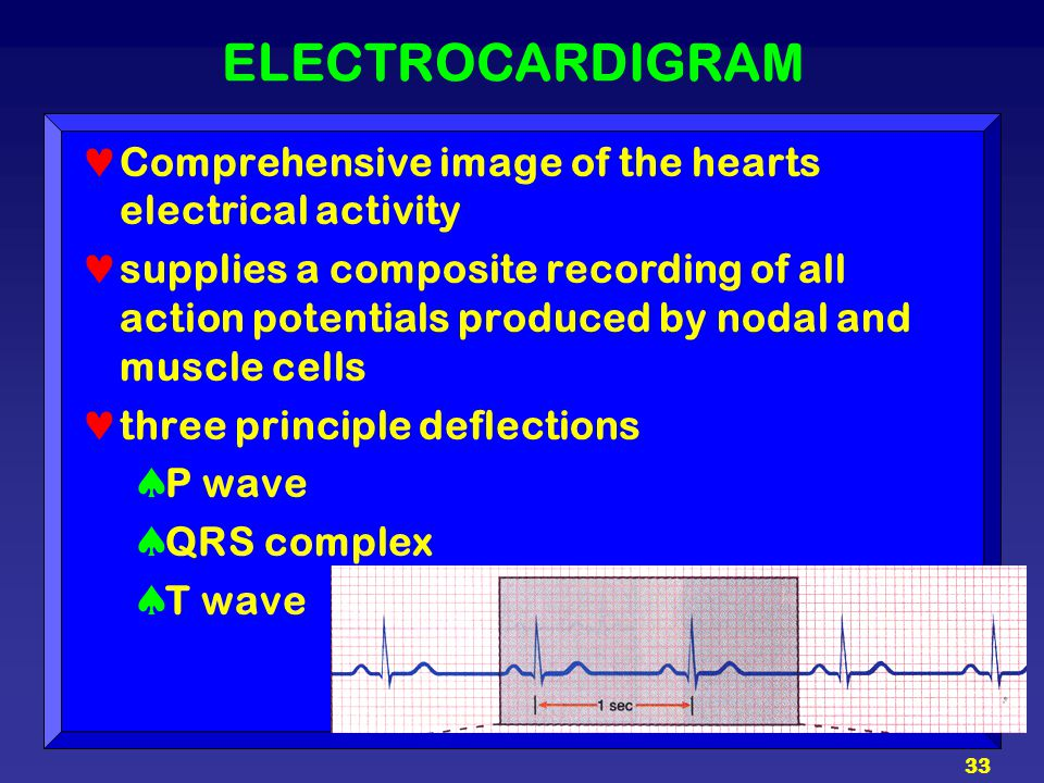 ELECTROCARDIGRAM Comprehensive image of the hearts electrical activity
