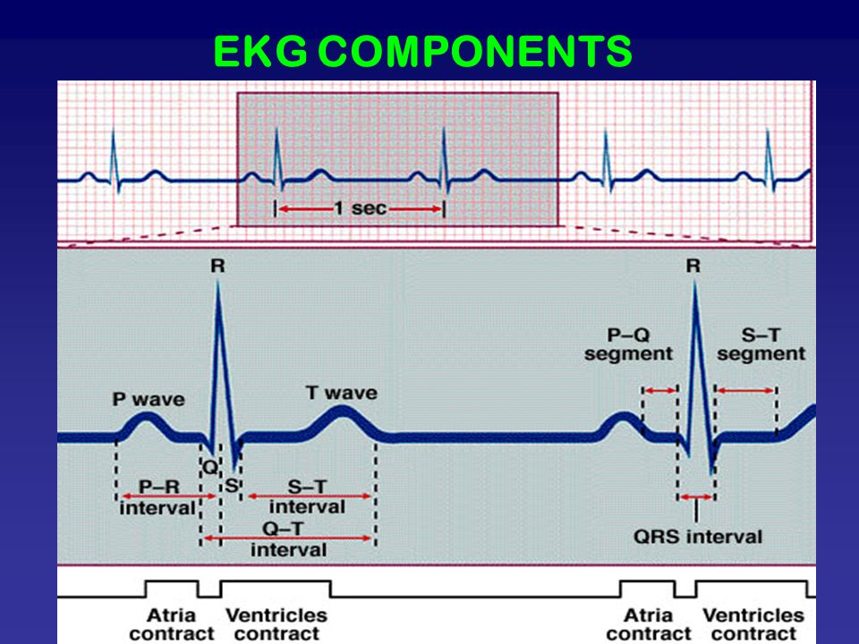 EKG COMPONENTS