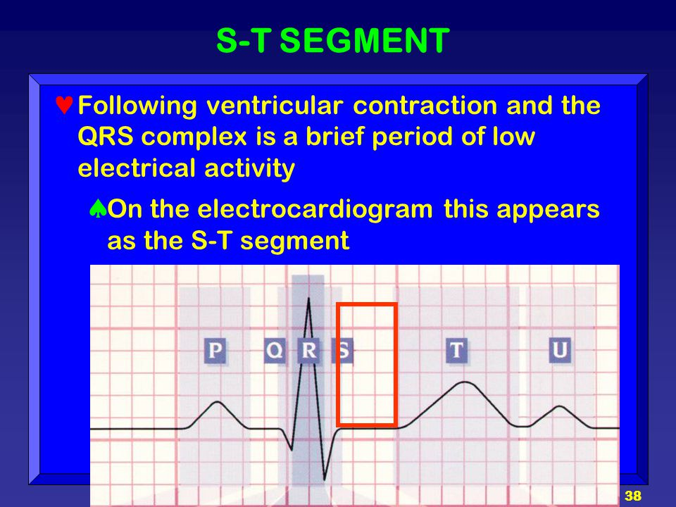S-T SEGMENT Following ventricular contraction and the QRS complex is a brief period of low electrical activity.