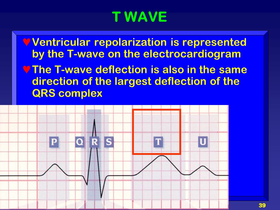 T WAVE Ventricular repolarization is represented by the T-wave on the electrocardiogram.