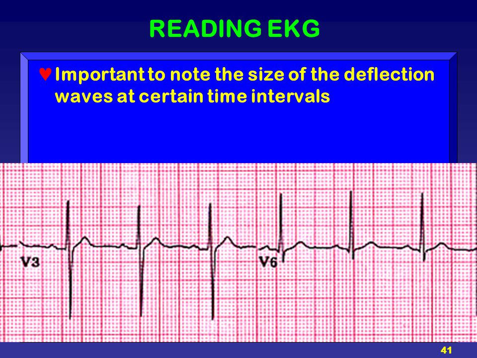 READING EKG Important to note the size of the deflection waves at certain time intervals