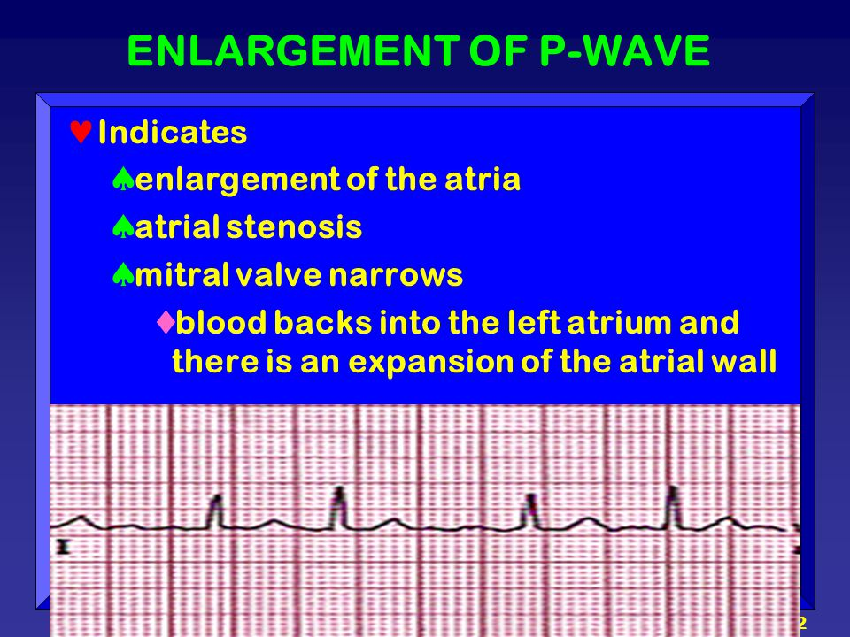 ENLARGEMENT OF P-WAVE Indicates enlargement of the atria