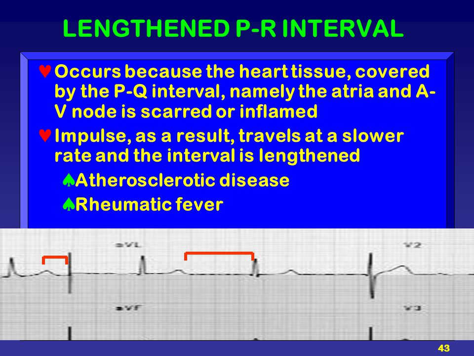 LENGTHENED P-R INTERVAL
