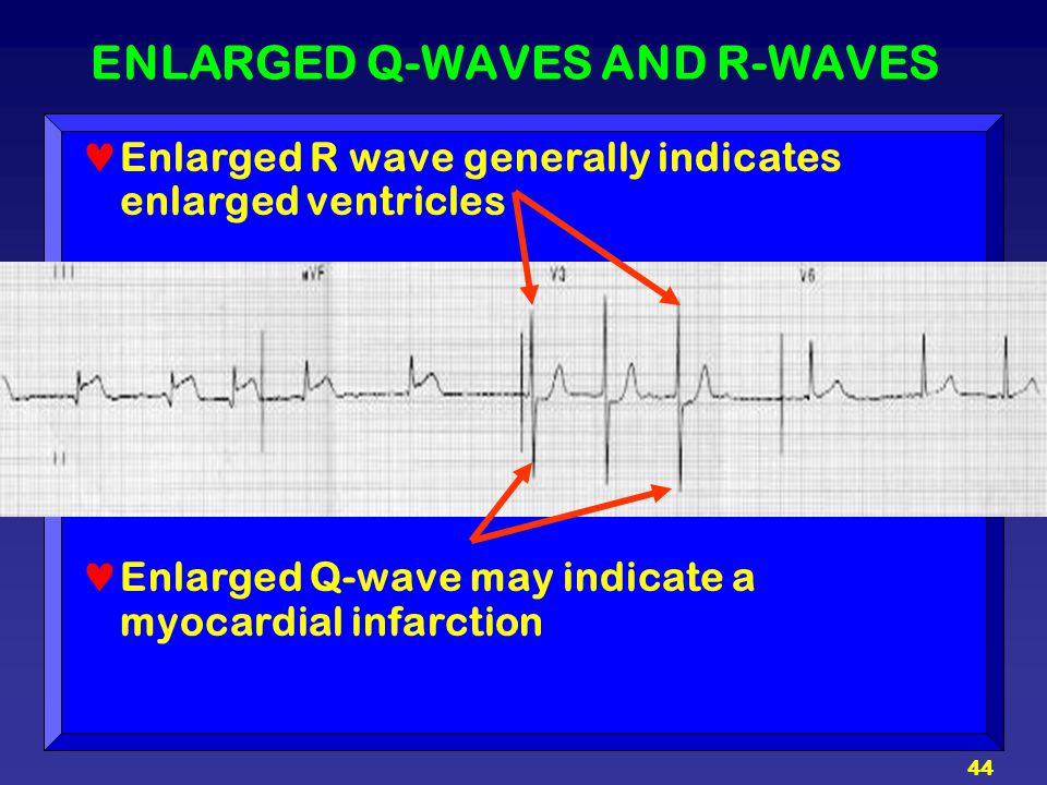 ENLARGED Q-WAVES AND R-WAVES