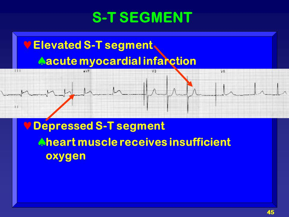 S-T SEGMENT Elevated S-T segment acute myocardial infarction