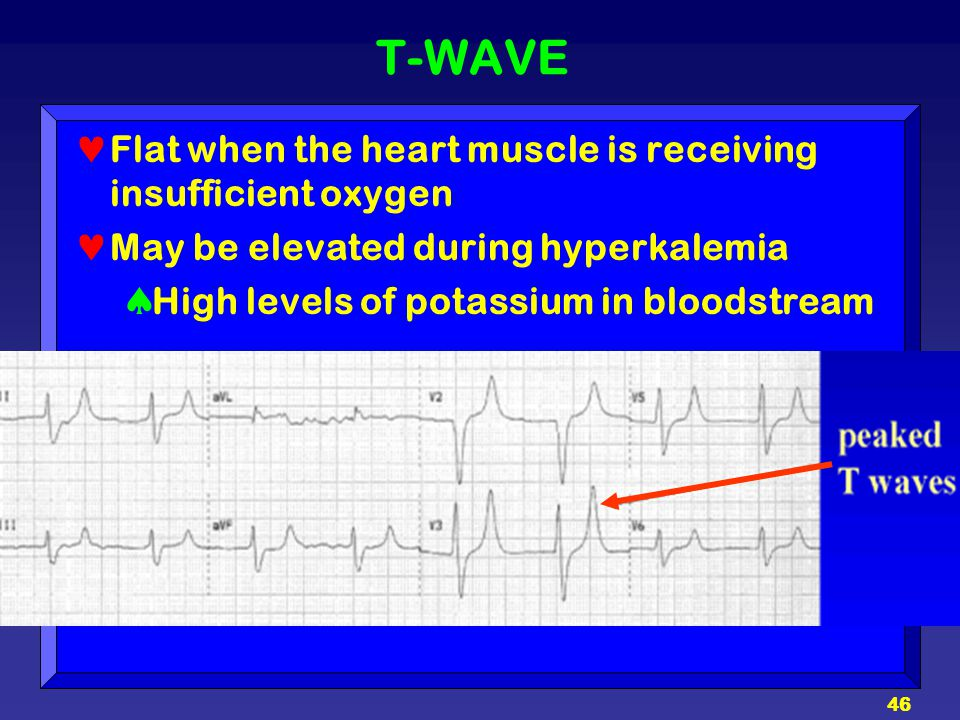 T-WAVE Flat when the heart muscle is receiving insufficient oxygen