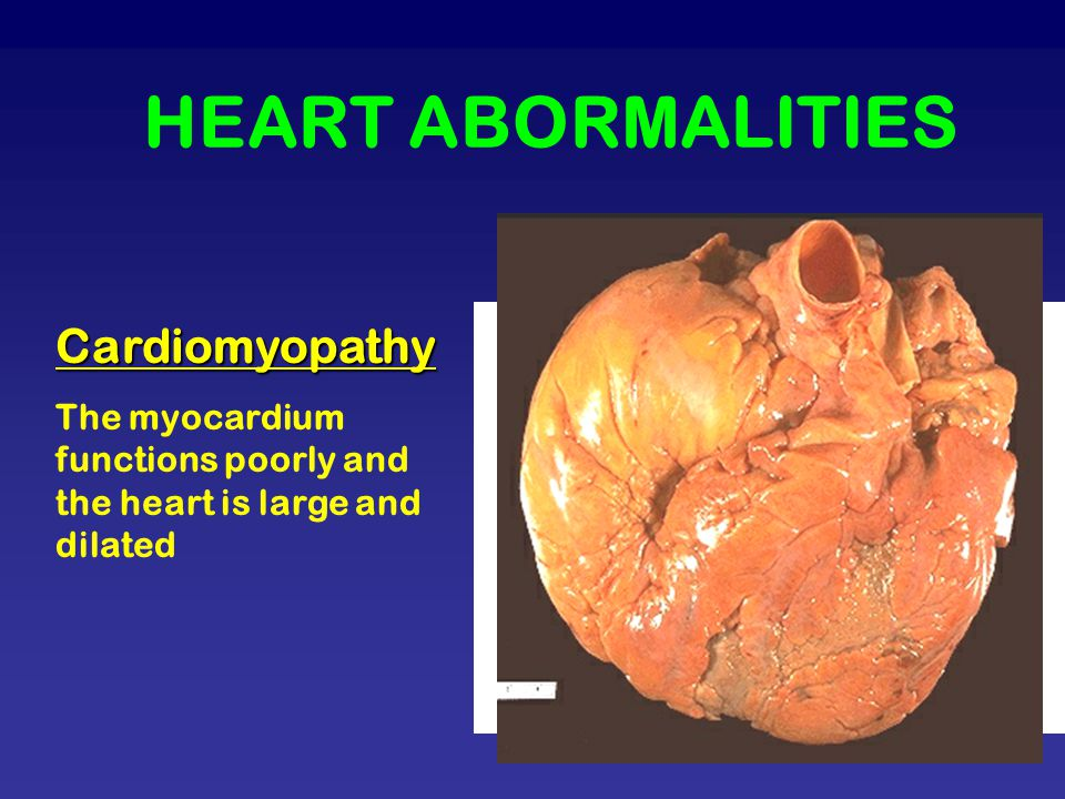 HEART ABORMALITIES Cardiomyopathy