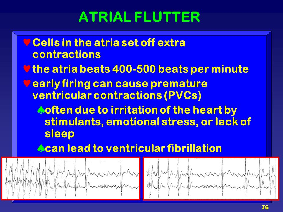 ATRIAL FLUTTER Cells in the atria set off extra contractions