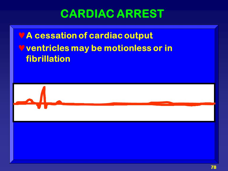 CARDIAC ARREST A cessation of cardiac output