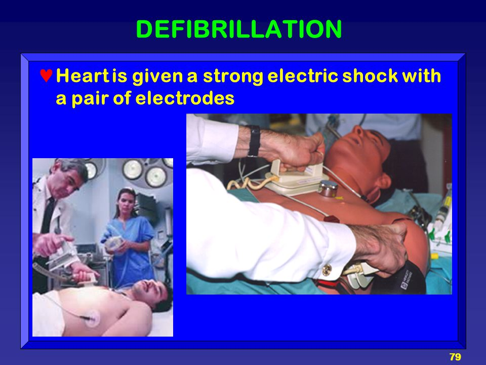 DEFIBRILLATION Heart is given a strong electric shock with a pair of electrodes