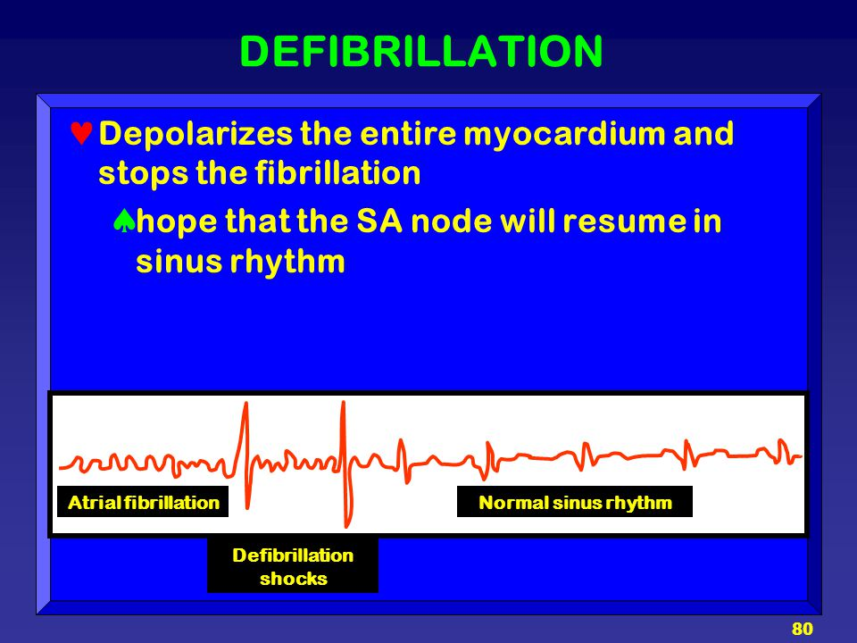 Defibrillation shocks