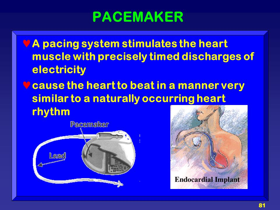 PACEMAKER A pacing system stimulates the heart muscle with precisely timed discharges of electricity.
