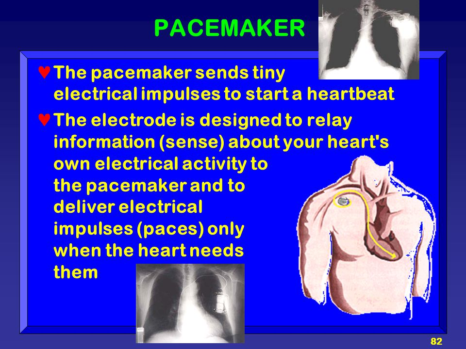 PACEMAKER The pacemaker sends tiny electrical impulses to start a heartbeat.