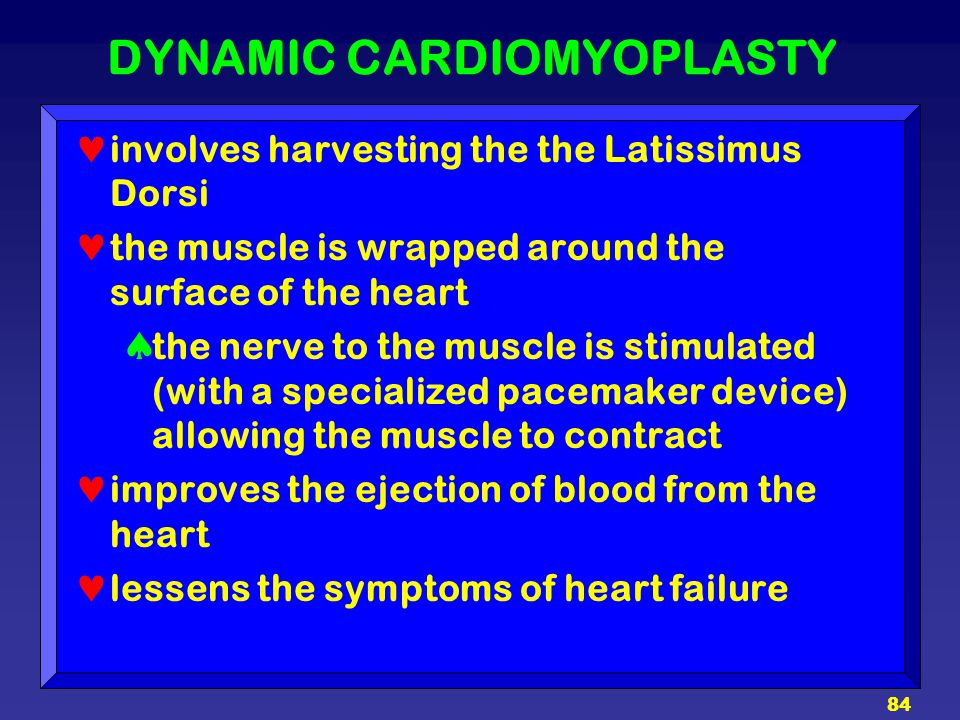 DYNAMIC CARDIOMYOPLASTY