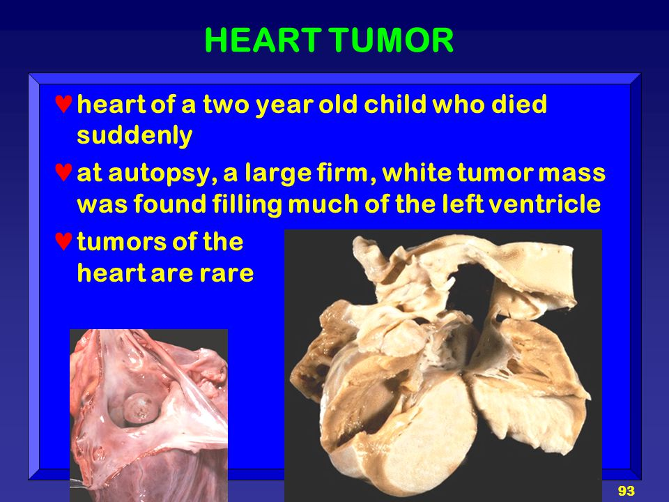 HEART TUMOR heart of a two year old child who died suddenly