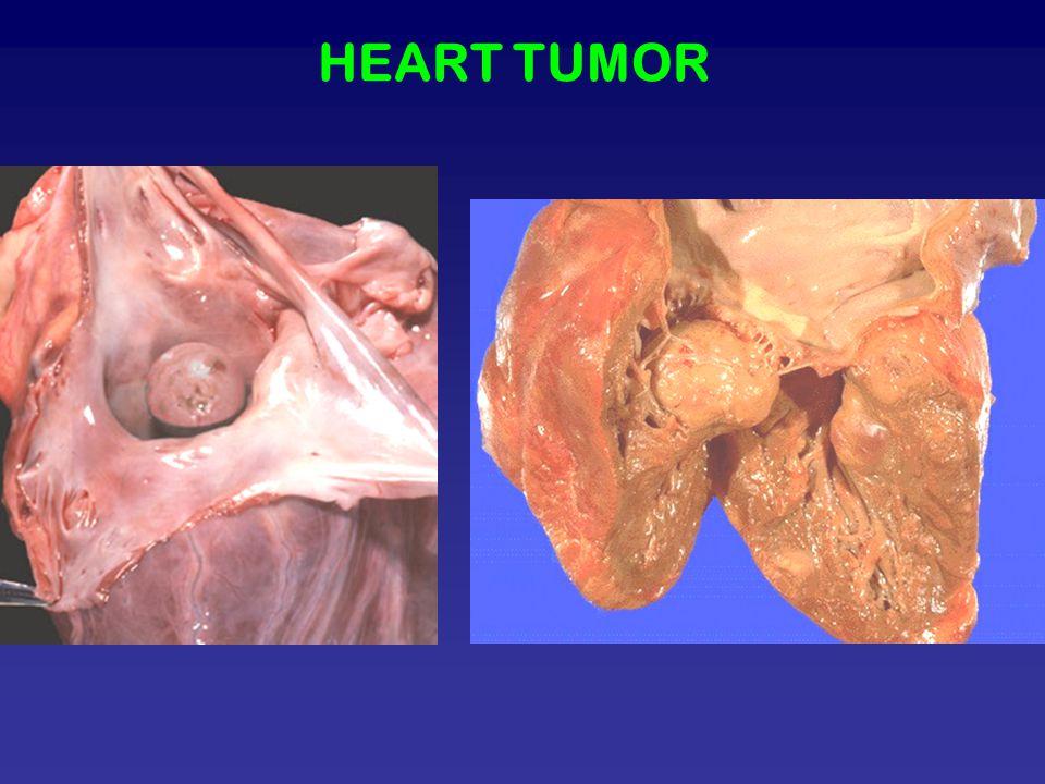 HEART TUMOR