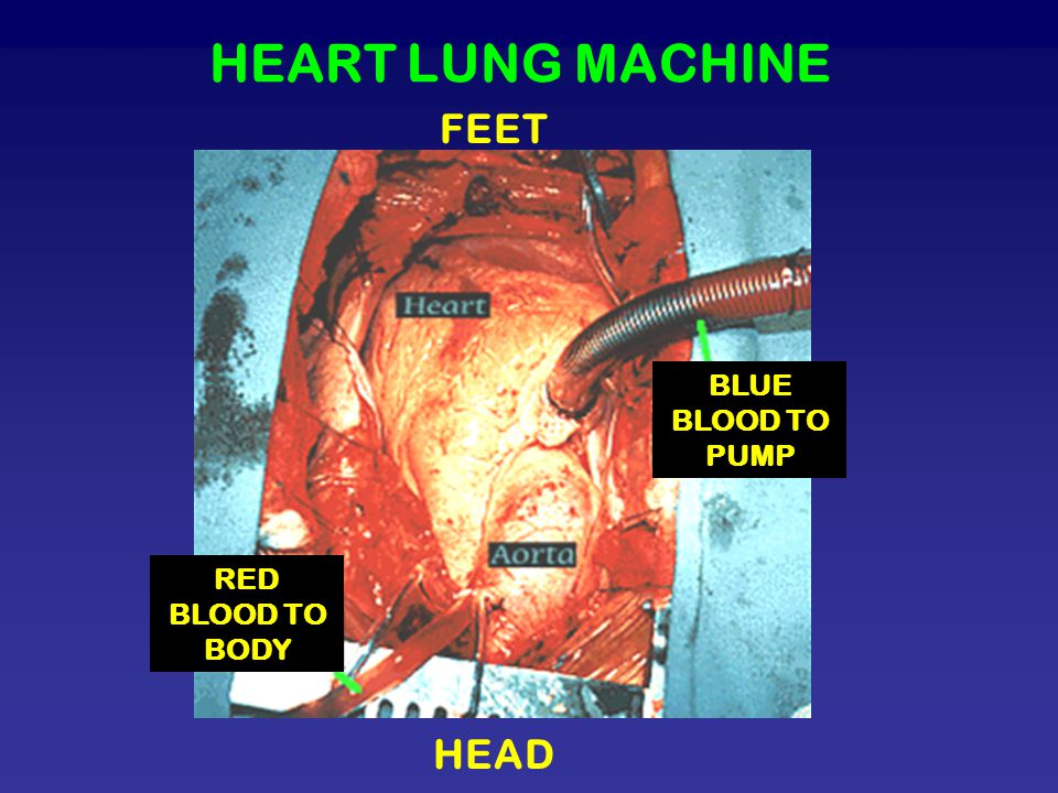 HEART LUNG MACHINE FEET BLUE BLOOD TO PUMP RED BLOOD TO BODY HEAD