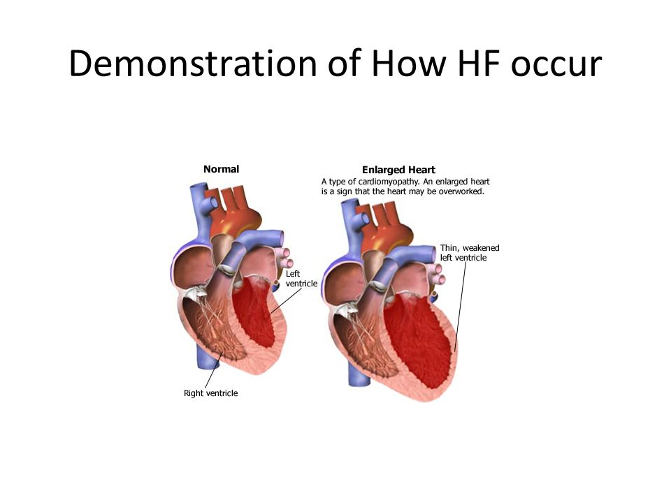 Demonstration of How HF occur