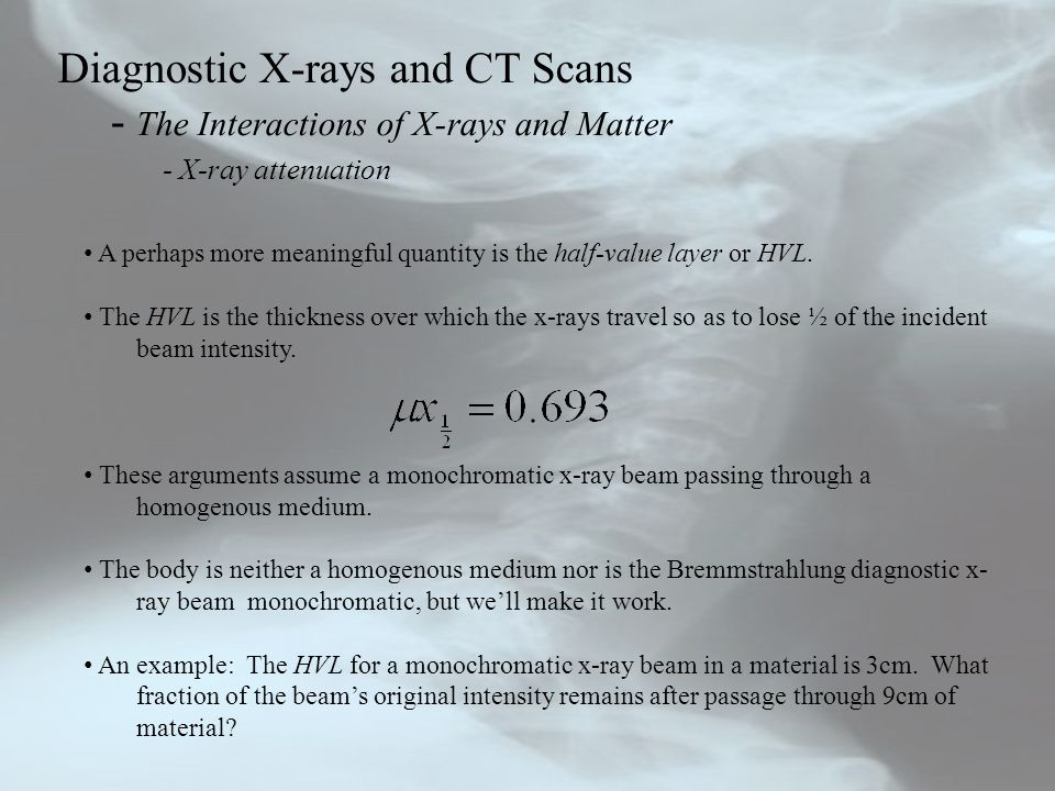 Diagnostic X-rays and CT Scans - The Interactions of X-rays and Matter