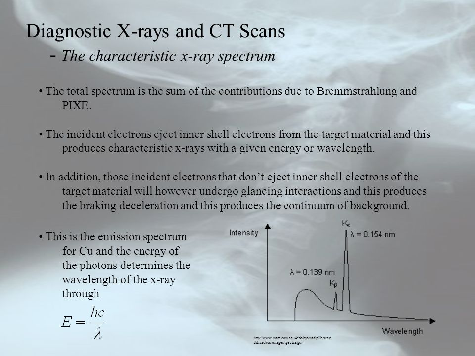 Diagnostic X-rays and CT Scans - The characteristic x-ray spectrum
