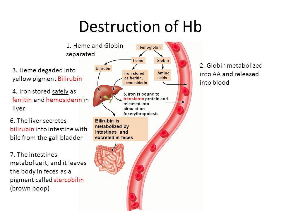 Destruction of Hb 1. Heme and Globin separated