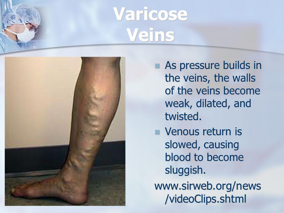 Varicose Veins www.sirweb.org/news/videoClips.shtml