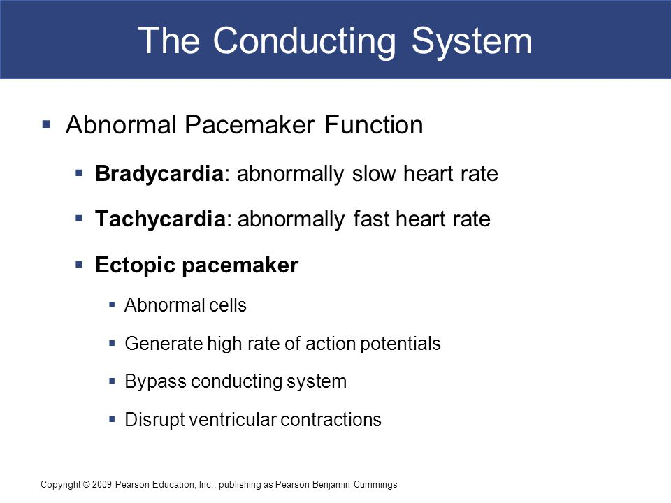 The Conducting System Abnormal Pacemaker Function