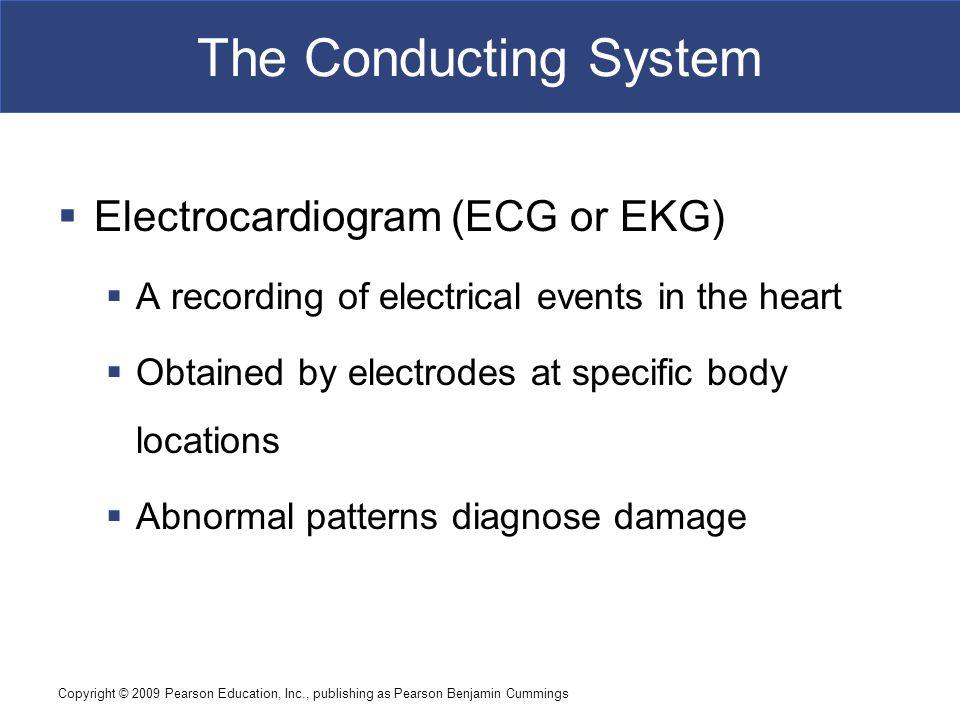 The Conducting System Electrocardiogram (ECG or EKG)