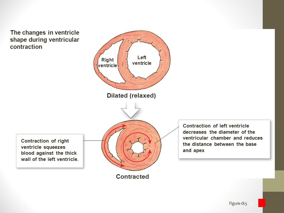 Dilated (relaxed) Contracted The changes in ventricle