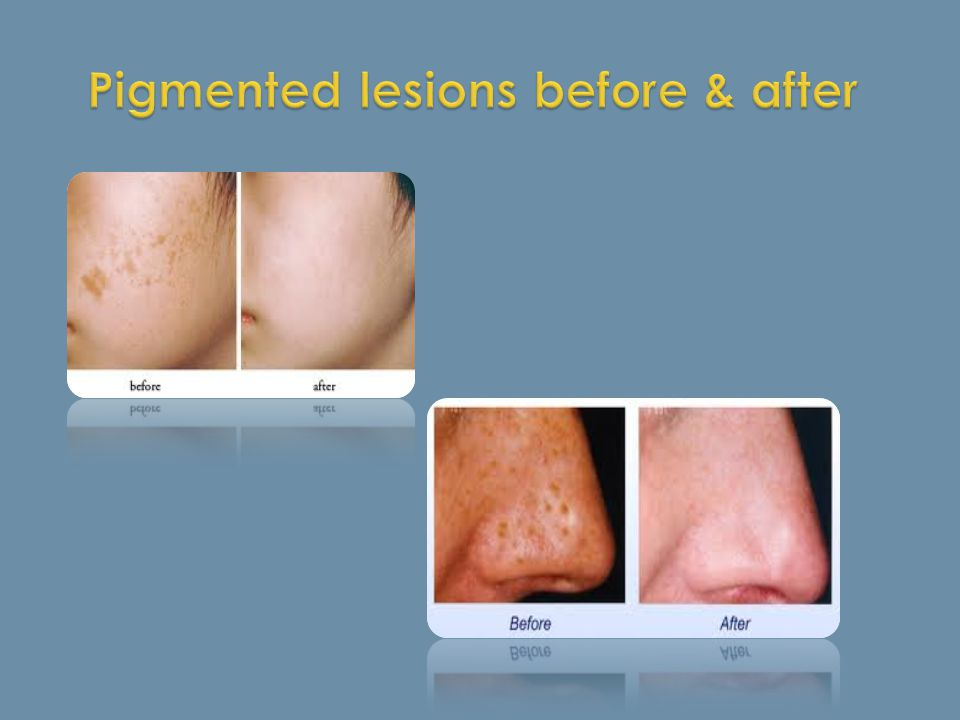 Pigmented lesions before & after